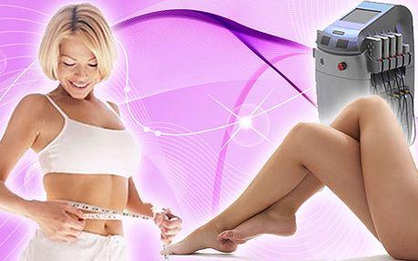 Světový hit je konečně v ČR! Revoluční laserová liposukce(40 min.) přístrojem GeLipo laser + lymfodrenáž (50 min.) za skvělých 1250 Kč. Zeštíhlíte až o 2 konfekční velikosti! Okamžitý úbytek až 7 cm po prvním ošetření.