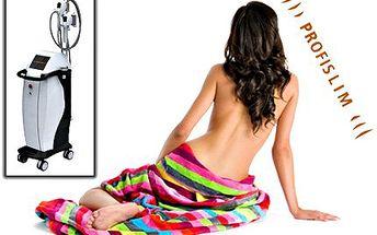2x kryolipolýza + bonus: nemrznoucí membrána grátis! Lze aplikovat na břicho, hýždě, stehna a záda.