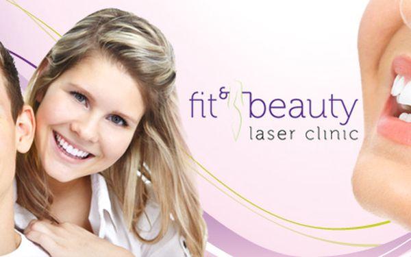 Šetrné bělení zubů laserem. Vybělí o 3 až 8 odstínů