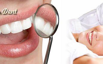 Dentální hygiena od lékaře včetně Air Flow!