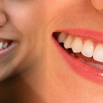 Chcete mít perfektní úsměv, ale nedaří se vám to? Za neuvěřitelnou cenu 399Kč máme řešení! Jedinečný přístroj X-PLOSIVE SMART LIGHT EXPORT vám zuby rozzáří doběla a to jen za 30 minut!