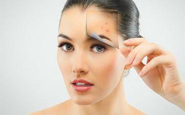 Účinné ošetření proti akné! Zbavte se akné s nanotochnologií a speciálního séra!