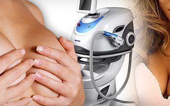 ZPEVNĚNÍ POPRSÍ S OKAMŽITÝM PUSH-UP EFEKTEM pomocí radiofrekvence se slevou 74 %!! Získejte dokonalý, sexy dekolt bez skalpelu a zvedněte si sebevědomí pomocí přístroje E-LIGHT SK6!!