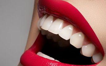 Zářivý úsměv díky bělení zubů! Radujte se ze zářivě bílého úsměvu a zvedněte si sebevědomí!