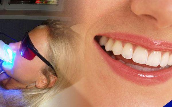 Krásný a zářivý úsměv za pár minut a nyní s 80% slevou ! Neperoxidové bělení zubů metodou zvanou Smile Brilliant Teeth Whitening System pocházející z USA. Svěřte se do péče profesionálům !