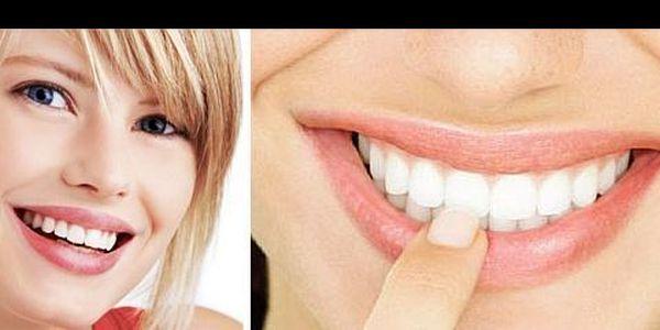 Bělící gel na zuby se slevou 68 %: Toužíte po běloskvoucím úsměvu? Není nic snazšího! Pořiďte si bělič zubů a oslňte okolí bílými a doslova zářivými zuby. Zbavte se skvrny od kávy, čaje či červeného vína.