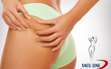 Permanentka na 5x Vacu line (1 procedura - 30min.) + rozehřátí v kardiozóně 10 min.