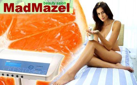 Zabijak celulitídy sa volá KESTOS T2! 75 minútové bezbolestné ošetrenie vybranej časti tela s okamžitým účinkom spolu s lymfodrenážou a kryogelom len za 11,90 € v Salóne MadMazel!