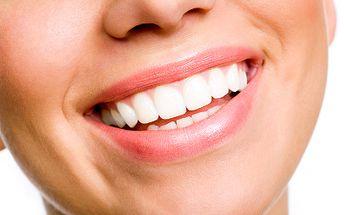 Neperoxidové bělení zubů jen za 499 Kč! Speciální, šetrná a zcela bezbolestná metoda!