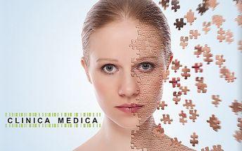 Rádiofrekvencia tváre, krku alebo dekoltu v Clinica Medica za 3,99 eur