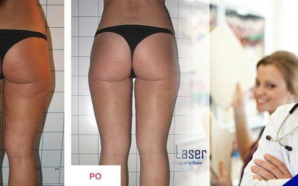 Zhubněte a zpevněte tělo současně- 30 minut Lipo laser + 30 minut Vibra plate + chlazená voda!