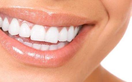 Okamžité bělení zubů! 1 návštěva, neperoxidové! Jen 20 minut!