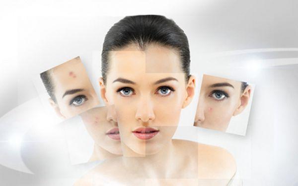 Akce pro tábor! Nevíte, co s vaší pleti? Co by vám pomohlo k dokonalosti? Nechte si poradit od profesionálů s 40% slevou! Balíček kosmetického poradenství s ošetřením a diagnostikou přístrojem skin analyzer pouze za 300 kč!