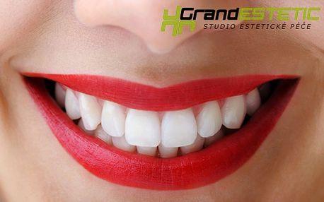 Bělení zubů bez peroxidu! Šetrné bělení francouzskou metodou Star One. Bělejší zuby o 3–8 odstínů si budete užívat po celý rok!