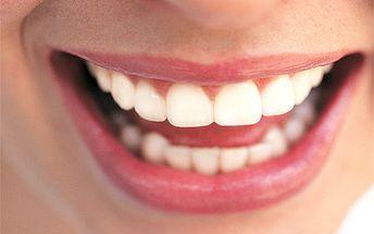 Profesionálne bielenie zubov bez použitia peroxidu vodíka v príjemnom prostredí salónu Solee Estetic so zľavou až 87%! Získajte žiarivý úsmev a oslňte svoje okolie!