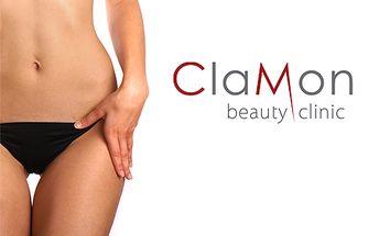 Schudnite vďaka rádiofrekvenčnému prístroju v salóne Clamon beauty clinic! Prístroj dokáže urýchliť metabolizmus v podkoží rovnako ako fitness cvičenie, preto je úplne bezpečný.