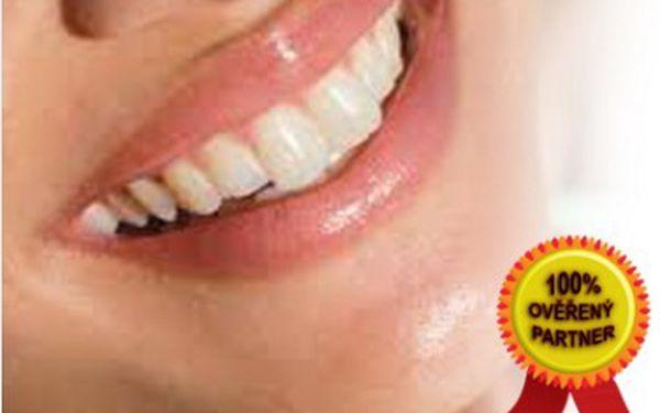 Bělení zubů za 360 Kč ve Studiu EstheticForYou v centru u Nového Smíchova u Anděla! Oslňte ostatní svým úsměvem.