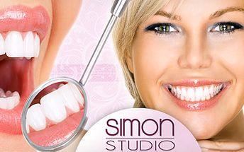 Krásný úsměv díky neperoxidovanému bělení zubů