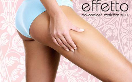 Len 3,70 € za 30-minútovú prístrojovú lymfodrenáž v salóne EFFETTO! Zbavte sa celulitídy a pocitu ťažkých nôh a detoxikujte svoje telo od škodlivín!