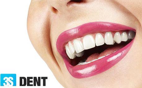 Bielenie zubov lampou ZOOM, ktorá Vám v priebehu hodiny vybieli zuby o 6-8 odtieňov alebo komplexná dentálna hygiena. Už od 29,90 €.