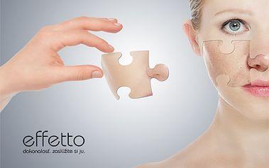 Diamantová mikrodermabrázia v spojení s vybraným kozmetickým ošetrením, ktoré až o 90% zvýši jej účinnosť! Odstraňuje z pleti nedostatky, škvrny, vrásky a pigmentácie!