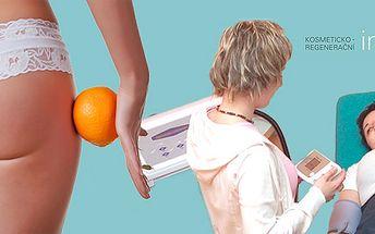 Lymfatická detoxikační masáž přístrojem DIGIPRESS