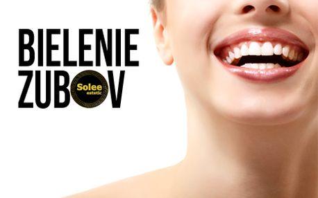Profesionálne bielenie zubov bez použitia peroxidu vodíka v príjemnom prostredí salónu Solee Estetic so zľavou až 71%! Získajte žiarivý úsmev a oslňte svoje okolie!