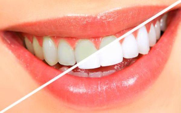Bělení zubů bez peroxidu s 90% slevou!