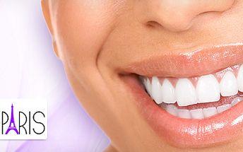 Neperoxidované bělení zubů jen za 349 Kč! Viditelný rozdíl již po první návštěvě!