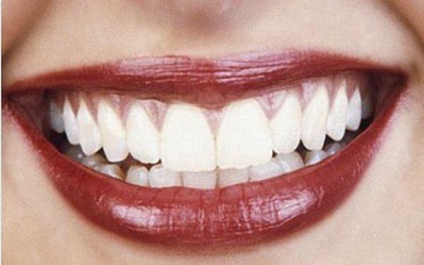 Neperoxidové bělení zubů za 340 Kč ve Studiu MyEsthetic v Galerii Butovice. Krásný a zářivý úsměv za pouhých 30 min!