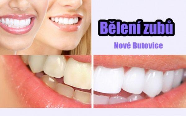 BĚLENÍ ZUBŮ BEZ PEROXIDU za fantasticky nízkou cenu! Studio na Andělu nebo OC Galerie Butovice! Profesionální bělení zubů bezpečně a efektivně! Krásný zářivý úsměv bez námahy!