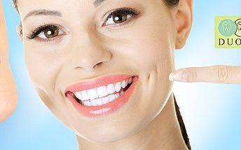 Bielenie zubov metódou studeného svetla
