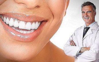 Bělení zubů skvělou neperoxidovou metodou v centru Olomouce. Získejte zářivý úsměv bělejší o 2 - 4 odstíny již po prvním sezení!
