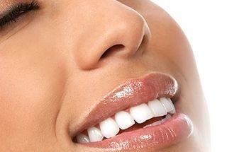Bělení a dobělení zubů americkou metodou New White Smile. V ceně 2 návštěvy salonu. Permanentně zářivý a bílý úsměv do 30 minut! Bezpečná a bezbolestná metoda, která prozáří Váš úsměv za 599 Kč!