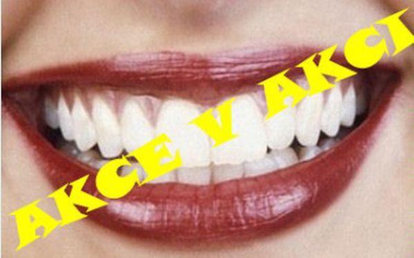 Bělení zubů za 299Kč ve Studiu MyEsthetic v Galerii Butovice. Krásný a zářivý úsměv za pouhých 30 min!