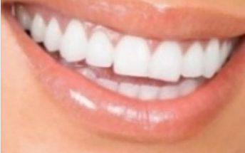 Bělení zubů za 299Kč v centru u Nového Smíchova u Anděla v Praze ve Studiu Esthetic for you!