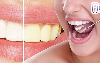 Bielenie zubov alebo diagnostika