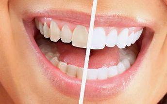 Šetrné neperoxidové bělení zubů s LED lampou