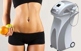 90 minut ultrazvukové liposukce, RF těla, lymfodrenáž!