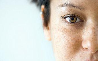 Prevence pigmentových skvrn a jejich odstranení pomocí séra a HIALUROFRAXU, aplikace laserem a frakčním perem na celý obličej.