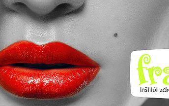 """""""Sexy lips"""" zväčšenie pier kyselinou hyalurónovou"""