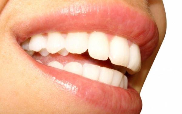 265 Kč za BEZPEROXIDOVÉ BĚLENÍ ZUBŮ! Historicky nejnižší cena za profesionální bělení zubů až o 6 odstínů a ihned viditelný výsledek! Studio STEP v centru P-1!