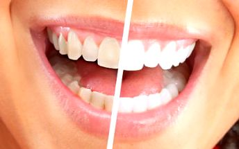 30minutové bělení zubů jen za 290 Kč!