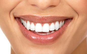 5x 20minutové účinné bělení zubů v soláriu v Brně