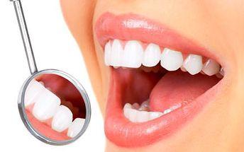 30minutové bělení zubů bez peroxidu se slevou 90 %!