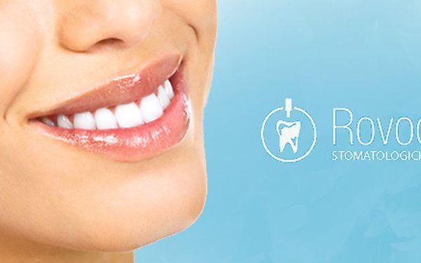 Laserové bělení zubů na klinice ROVODENT