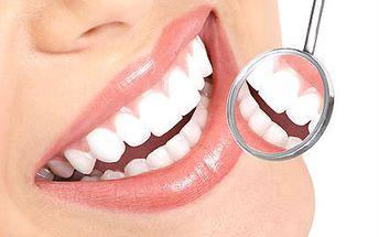 30minutové bělení zubů