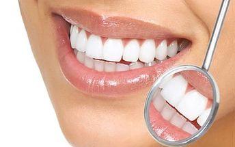 Šetrné bělení zubů bez peroxidu se slevou 76 %