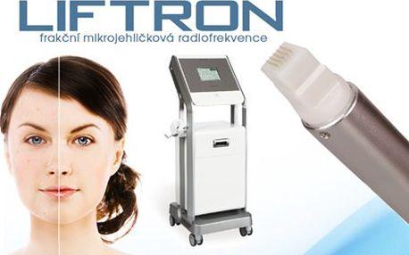 Mikrojehličková frakční radiofrekvence obličeje nebo krku