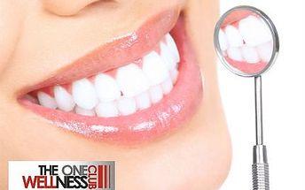 Bělení zubů bez peroxidu za pouhých 349 Kč!